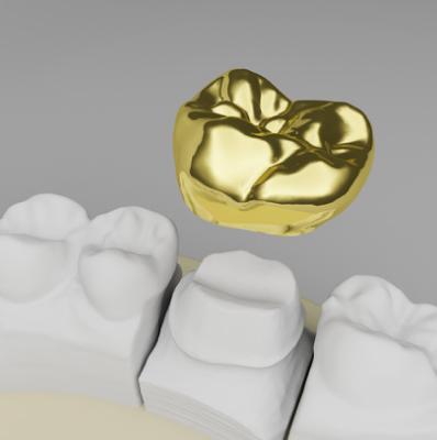 Korony zębowe Lublin